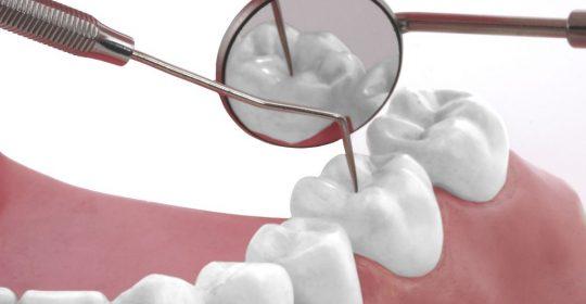 1526008 xl Dentisterie 540x280 Dentisterie générale