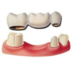 25. Bridge dentaire Info 300x230 Le bridge dentaire
