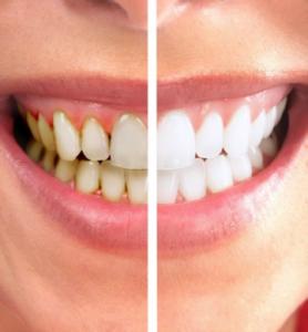 81. Blanchiment des dents Info 278x300 Le blanchiment des dents