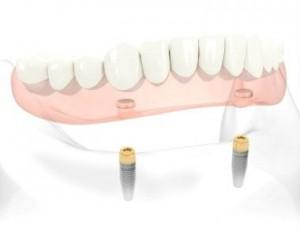 prothèse amovible implant 300x231 Conseils dhygiène pour prothèse dentaire amovible