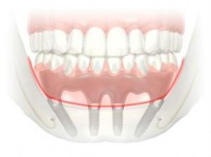 prothèse fixe implant 300x223 Les prothèses dentaires sur implants