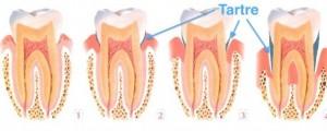 dechaussement dentaire tartre 300x120 Le déchaussement dentaire ou maladie parodontale
