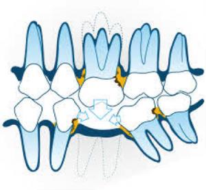 21. Pourquoi remplacer dents absentes 300x277 Pourquoi remplacer les dents absentes