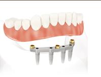 23. Dentier ne tient pas 2 Mon dentier ne tient pas, que faire ?