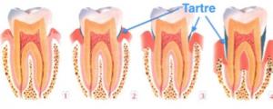 31. Dechaussement dentaire parodontie info 300x120 Le déchaussement dentaire