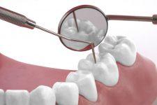 1526008 xl Dentisterie 225x150 Accueil