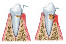 Parodontie dents 225x150 Spécialisations