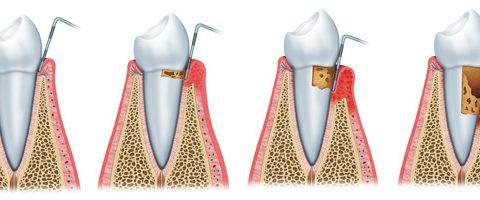 Parodontie dents 480x200 Spécialisations